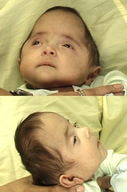 Craniosynostosis - Before Surgery Image