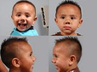 young boy after hemangioma treatment