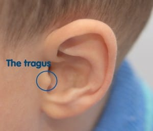 Swimmer's Ear Facts and Prevention Methods