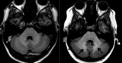 MRI of brain (1).jpg