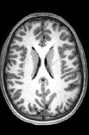 Axial MRI Peterson.jpg