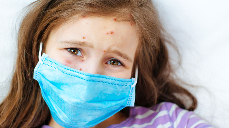 CHLA-Blog-Measles-Outbreak-782x439.jpg
