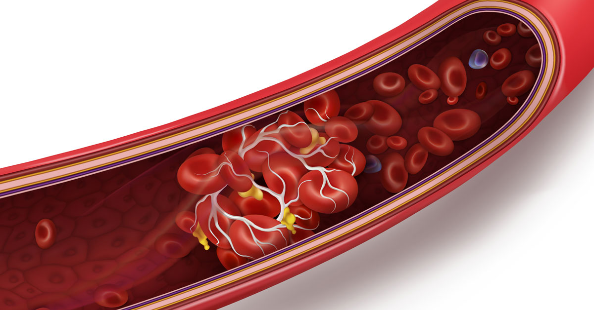 CHLA-Blog-Prevent-Recognize-Blood-Clot-02.jpg