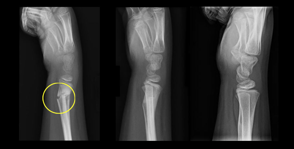 X-ray images of arm showing progression of fracture treatment