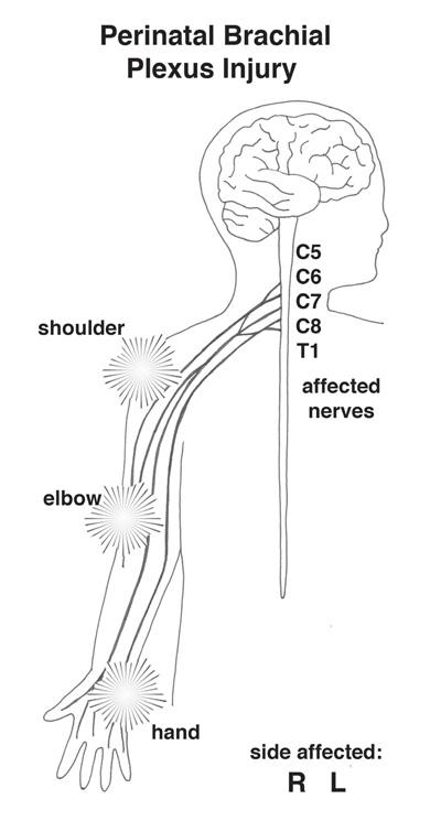 CHLA-Brachial-Plexus-Clinic-PBPI-01.jpg