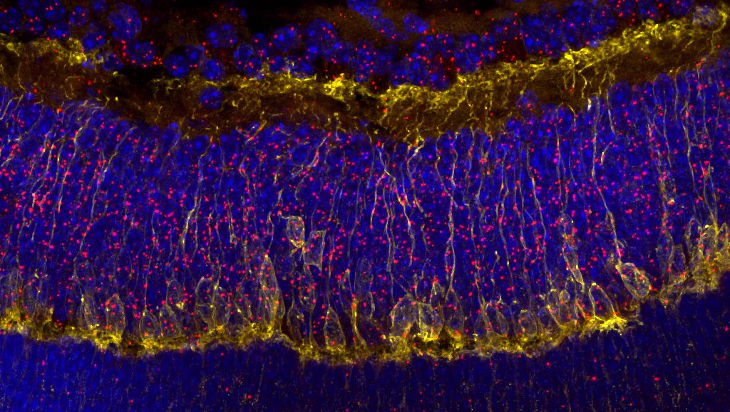 CHLA-Cellular-Imaging-Research-Core-1024x579.jpg