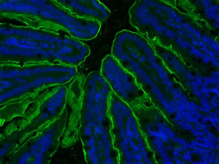 CHLA-Kohli-Figure 2 - Apical Sodium Bile acid Transporter (ASBT) staining of the terminal ileum sections with ASBT antibody (green fluorescence)..jpg