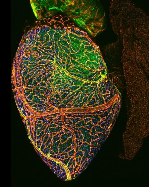CHLA-Zebrafish-heart.jpg
