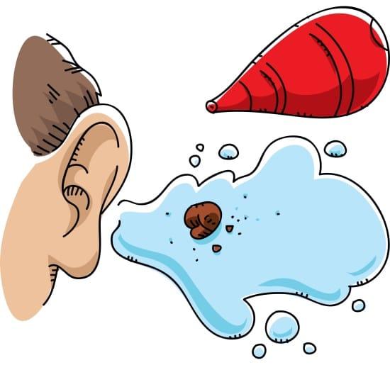 chla-ear-wax-removal-audiology.jpg