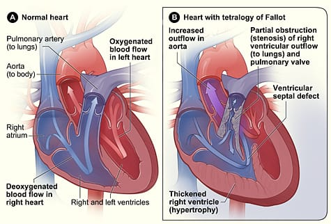 chla-nhlbi-nih-tetralogy-of-fallot.jpeg